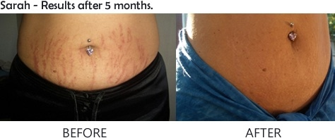mederma stretch mark therapy reviews before and after